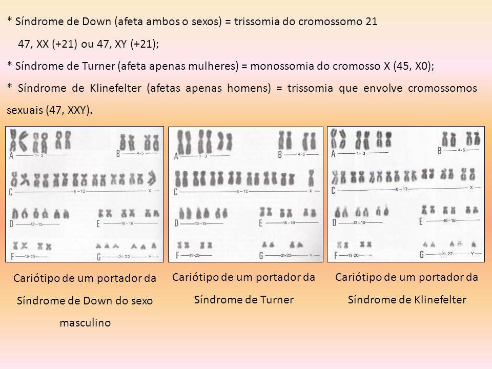 * Síndrome de Down (afeta ambos o sexos) = trissomia do cromossomo 21 47, XX (+21) ou 47, XY (+21); * Síndrome de Turner (afeta apenas mulheres) = mon