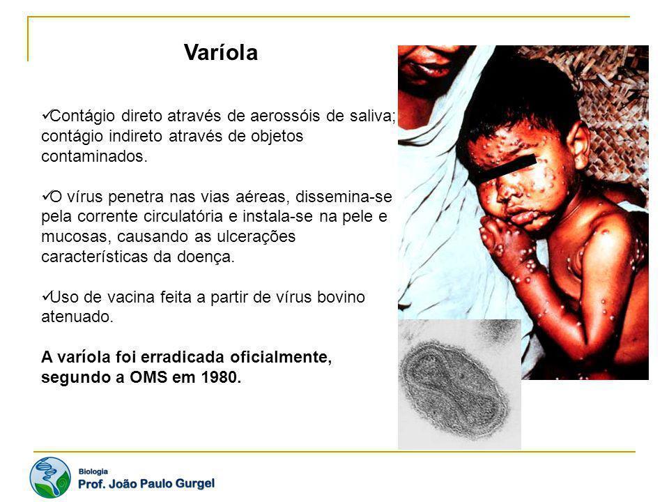 Varíola Contágio direto através de aerossóis de saliva; contágio indireto através de objetos contaminados. O vírus penetra nas vias aéreas, dissemina-