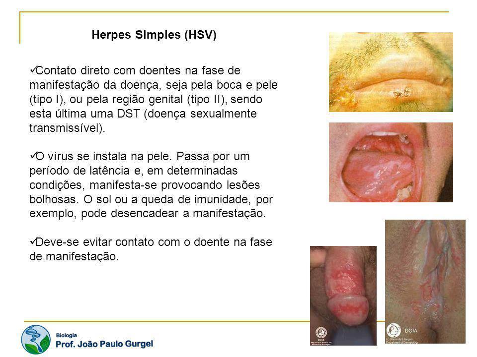 Herpes Simples (HSV) Contato direto com doentes na fase de manifestação da doença, seja pela boca e pele (tipo I), ou pela região genital (tipo II), s