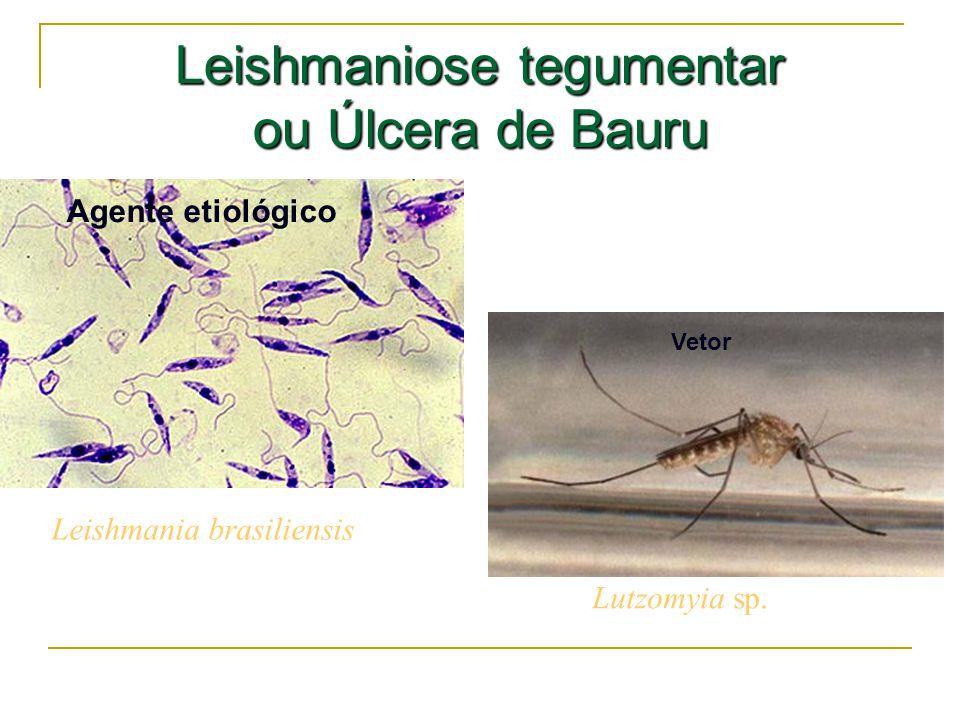 Leishmaniose tegumentar ou Úlcera de Bauru Leishmania brasiliensis Lutzomyia sp. Agente etiológico Vetor