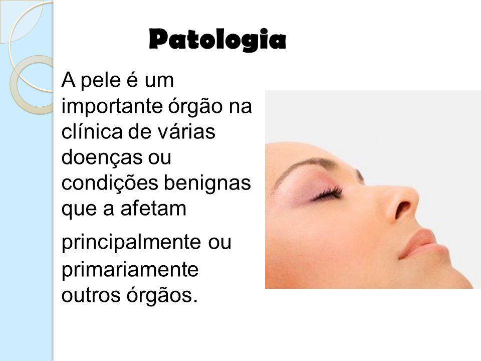 A pele é um importante órgão na clínica de várias doenças ou condições benignas que a afetam principalmente ou primariamente outros órgãos. Patologia