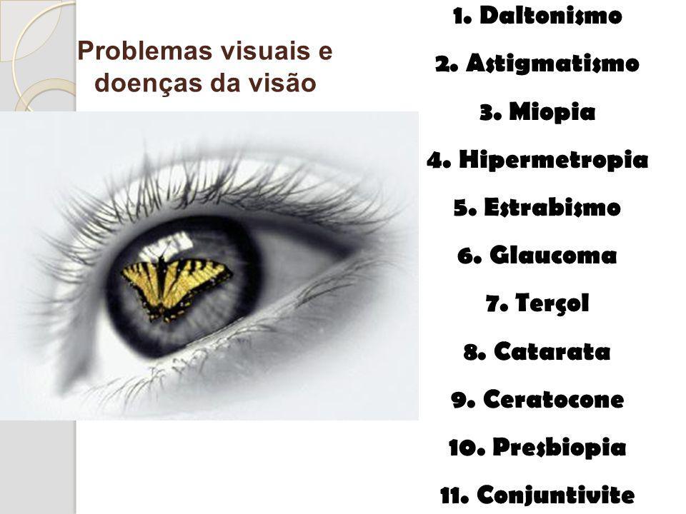 1. Daltonismo 2. Astigmatismo 3. Miopia 4. Hipermetropia 5. Estrabismo 6. Glaucoma 7. Terçol 8. Catarata 9. Ceratocone 10. Presbiopia 11. Conjuntivite
