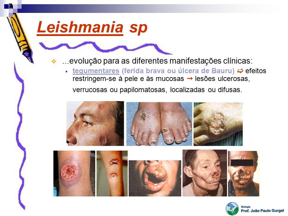 Leishmania sp...evolução para as diferentes manifestações clínicas: tegumentares (ferida brava ou úlcera de Bauru) efeitos restringem-se à pele e às m