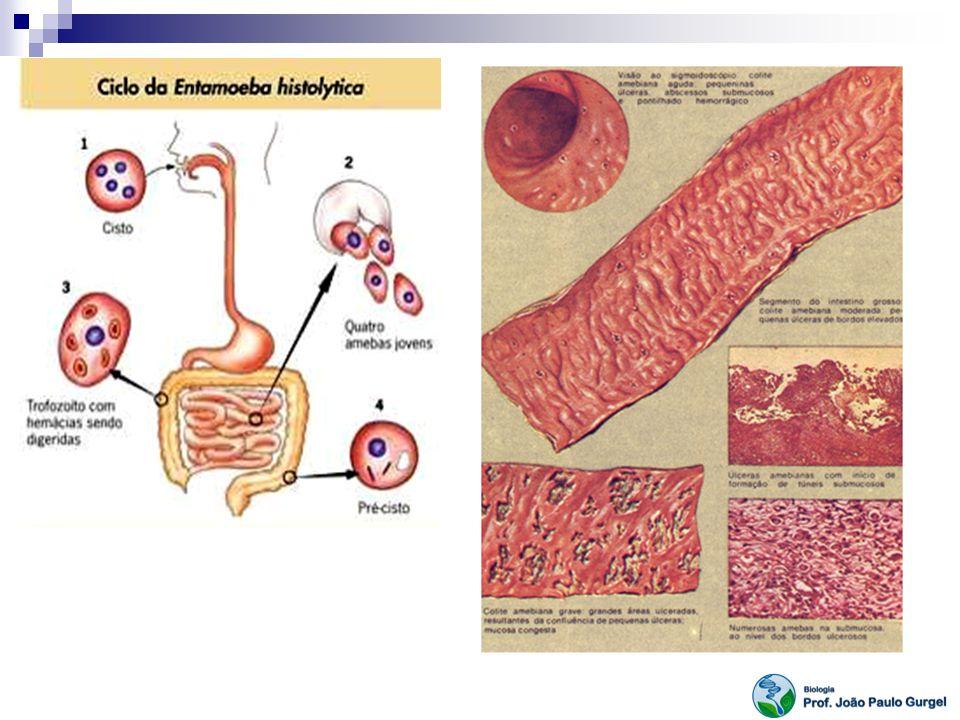 Trypanosoma cruzi Órgãos parasitados: pele chagoma de inoculação (geralmente braços, pernas ou rosto) pode assemelhar-se a um furúnculo ou a uma mancha avermelhada geralmente dolorosa: quase sempre acompanhados de ínguas nas regiões próximas ao local de contaminação; febre baixa e contínua com duração prolongada.