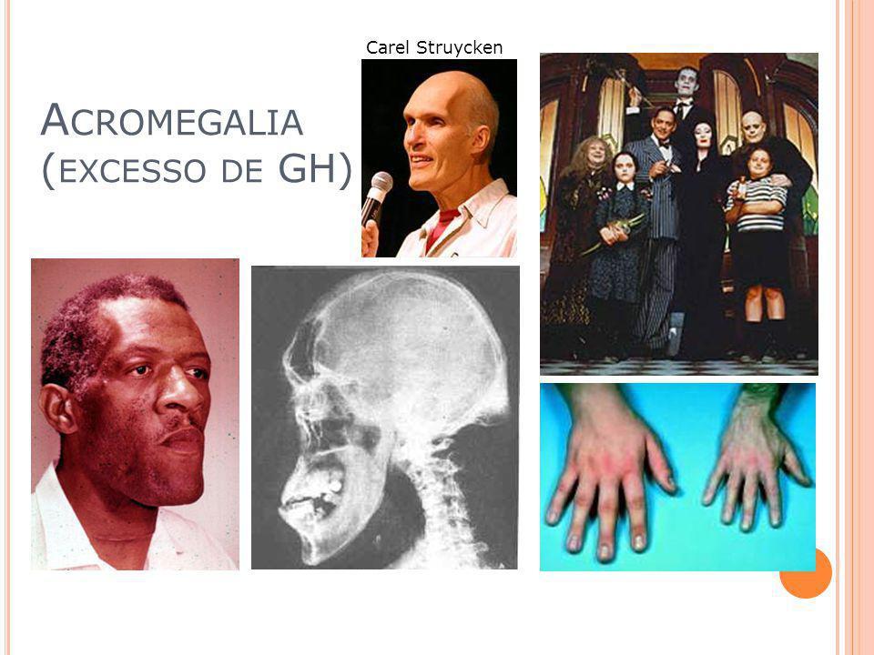 G IGANTISMO ( EXCESSO DE GH)