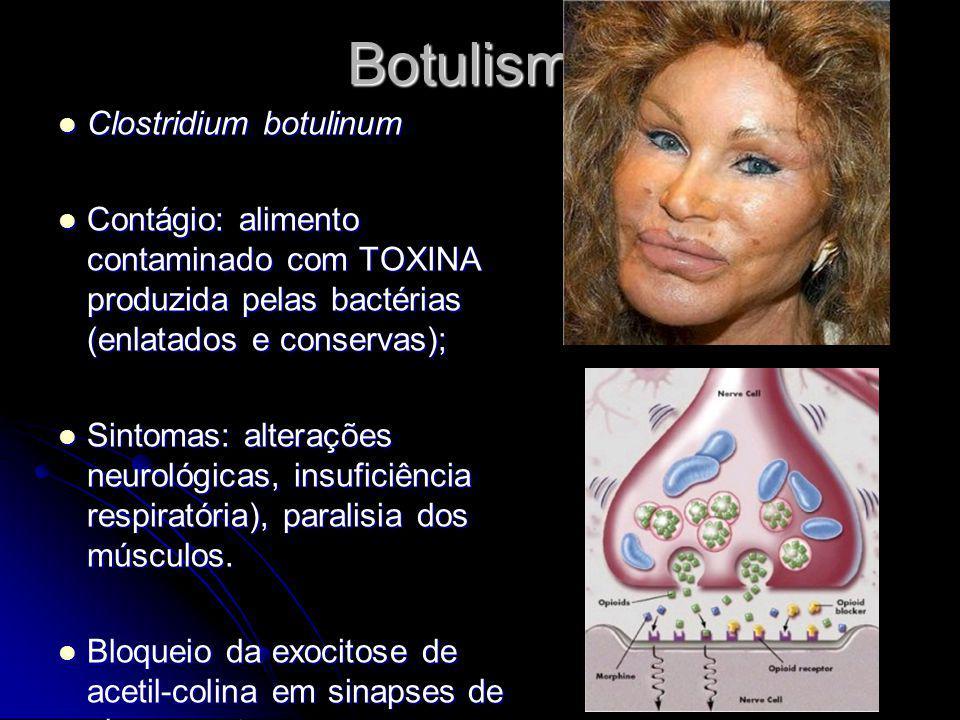 Botulismo Clostridium botulinum Clostridium botulinum Contágio: alimento contaminado com TOXINA produzida pelas bactérias (enlatados e conservas); Con