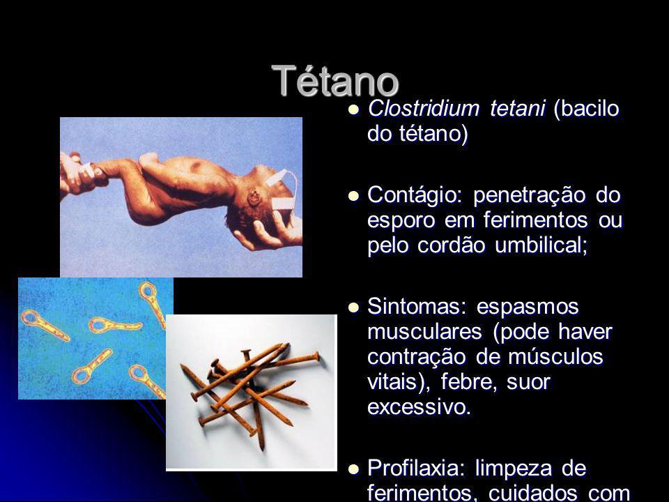 Tétano Clostridium tetani (bacilo do tétano) Clostridium tetani (bacilo do tétano) Contágio: penetração do esporo em ferimentos ou pelo cordão umbilic
