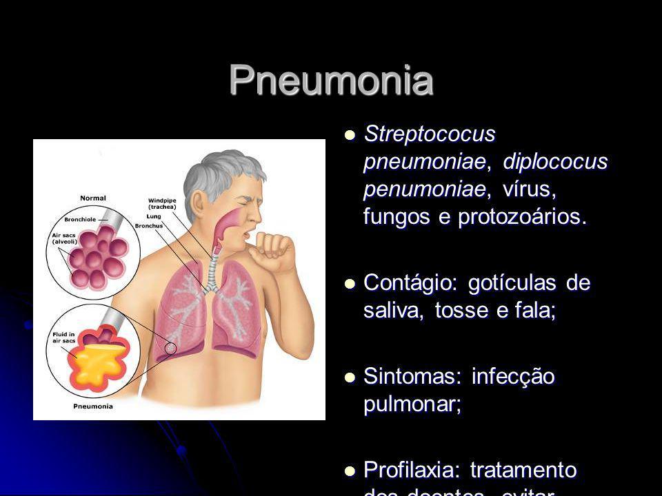 Pneumonia Streptococus pneumoniae, diplococus penumoniae, vírus, fungos e protozoários. Streptococus pneumoniae, diplococus penumoniae, vírus, fungos