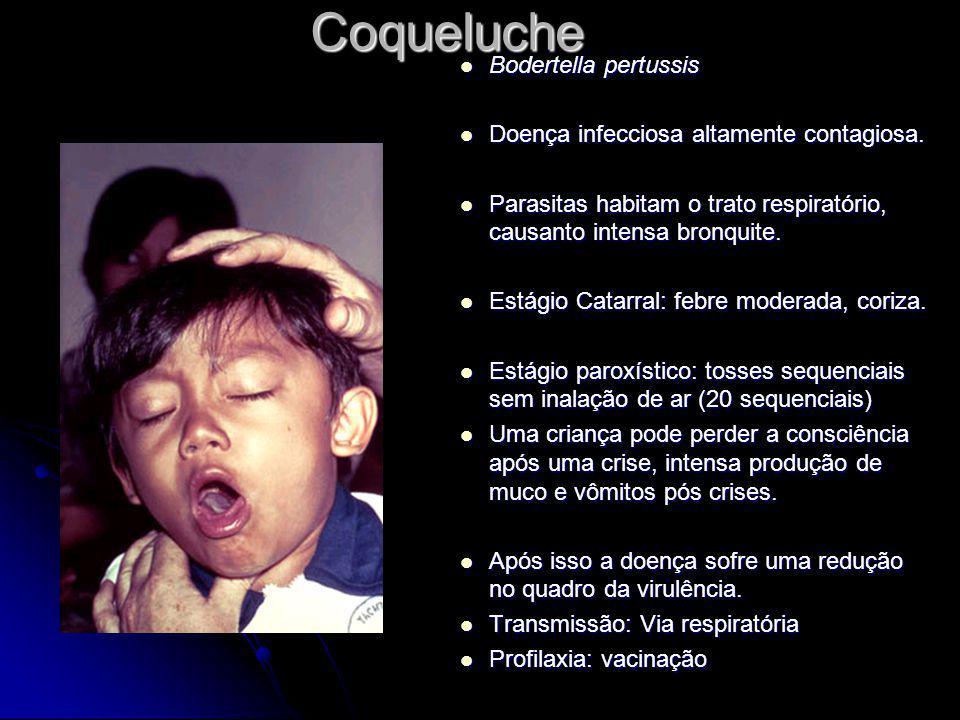 Coqueluche Bodertella pertussis Bodertella pertussis Doença infecciosa altamente contagiosa. Doença infecciosa altamente contagiosa. Parasitas habitam
