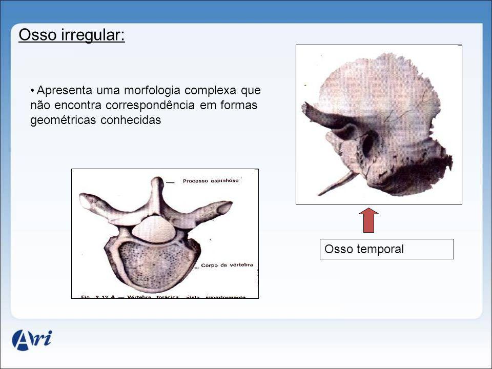 Osso irregular: Apresenta uma morfologia complexa que não encontra correspondência em formas geométricas conhecidas Osso temporal