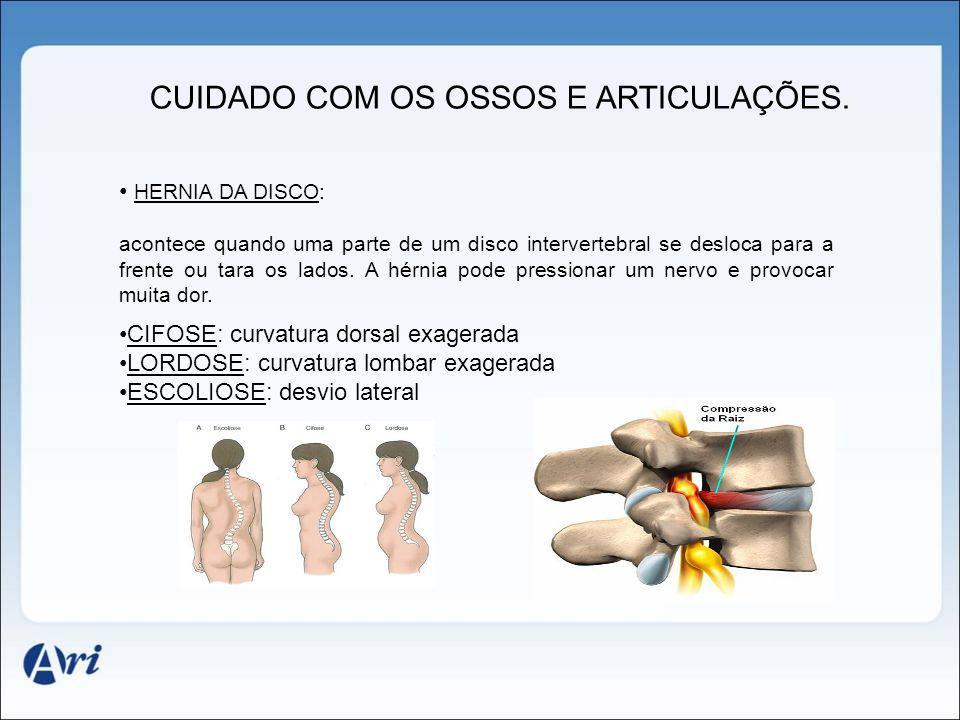 CUIDADO COM OS OSSOS E ARTICULAÇÕES. HERNIA DA DISCO: acontece quando uma parte de um disco intervertebral se desloca para a frente ou tara os lados.