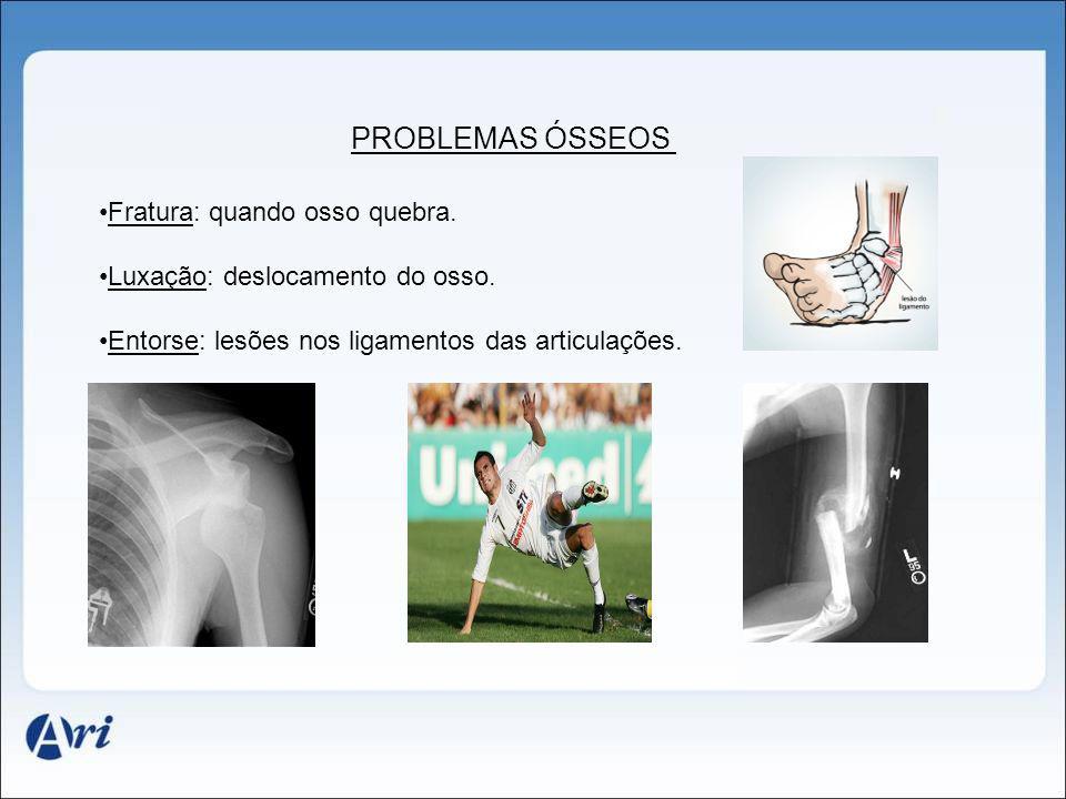 PROBLEMAS ÓSSEOS Fratura: quando osso quebra. Luxação: deslocamento do osso. Entorse: lesões nos ligamentos das articulações.