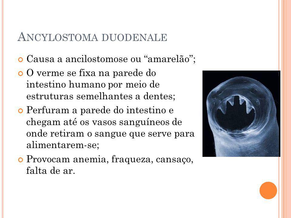 A NCYLOSTOMA DUODENALE Causa a ancilostomose ou amarelão; O verme se fixa na parede do intestino humano por meio de estruturas semelhantes a dentes; P