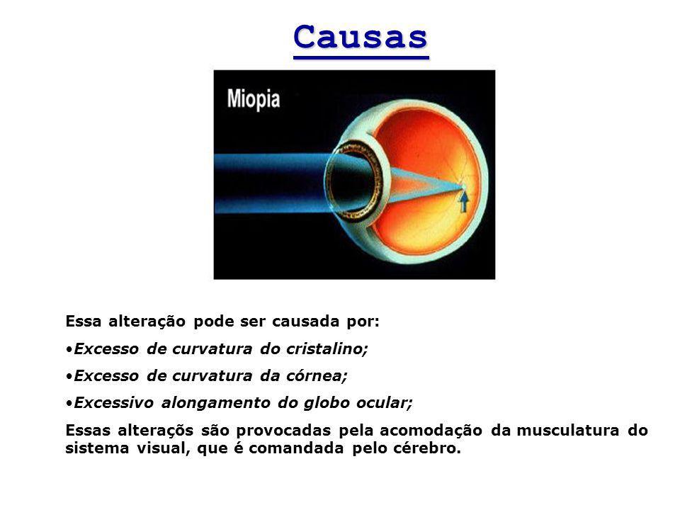 Essa alteração pode ser causada por: Excesso de curvatura do cristalino; Excesso de curvatura da córnea; Excessivo alongamento do globo ocular; Essas