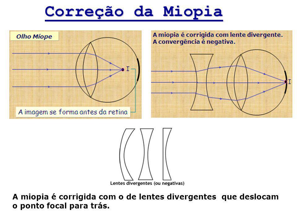 Correção da Miopia A miopia é corrigida com o de lentes divergentes que deslocam o ponto focal para trás.