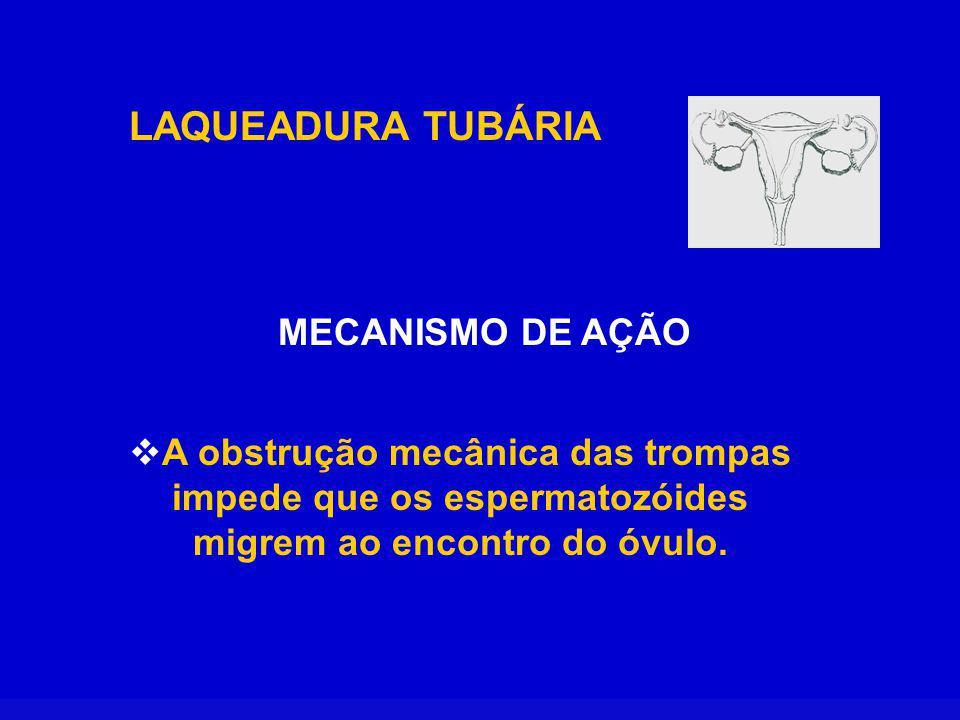 LAQUEADURA TUBÁRIA MECANISMO DE AÇÃO A obstrução mecânica das trompas impede que os espermatozóides migrem ao encontro do óvulo.