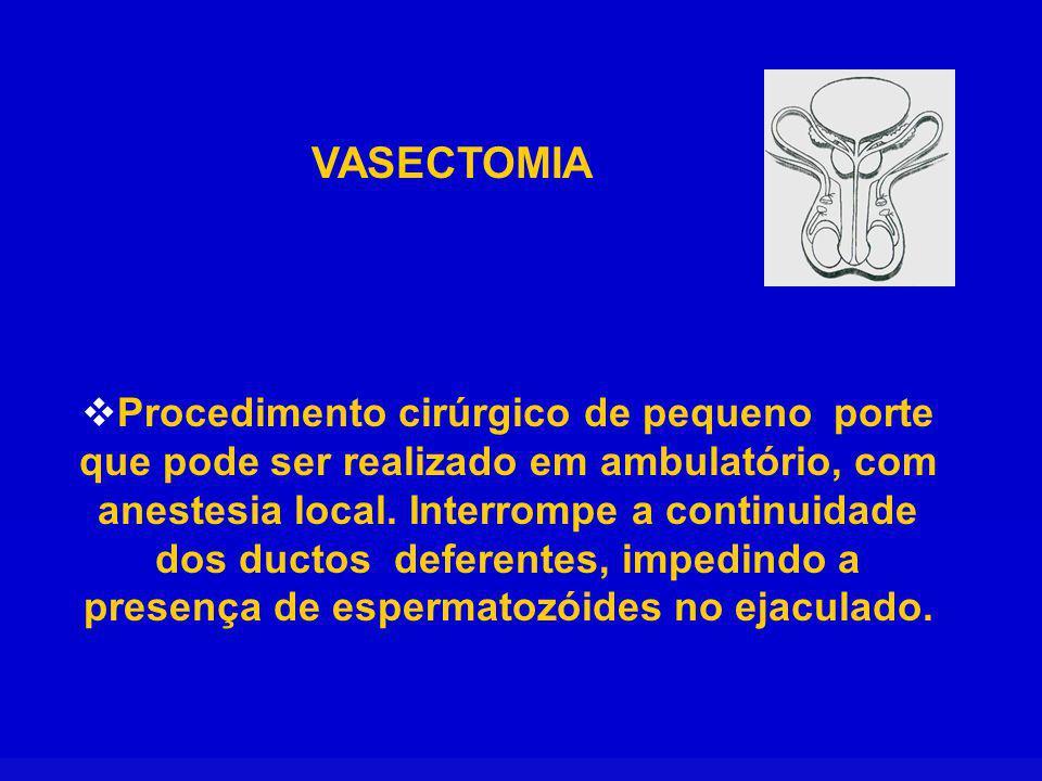 VASECTOMIA Procedimento cirúrgico de pequeno porte que pode ser realizado em ambulatório, com anestesia local. Interrompe a continuidade dos ductos de