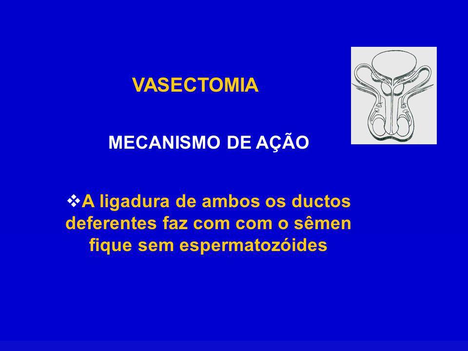 VASECTOMIA MECANISMO DE AÇÃO A ligadura de ambos os ductos deferentes faz com com o sêmen fique sem espermatozóides