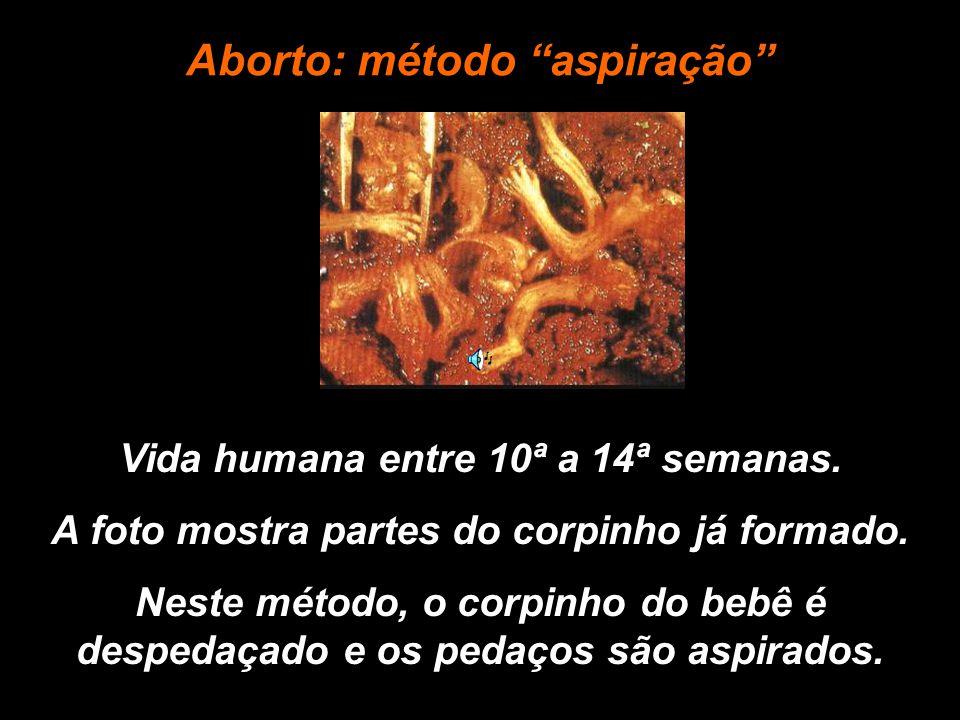 Vida humana entre 10ª a 14ª semanas.A foto mostra partes do corpinho já formado.