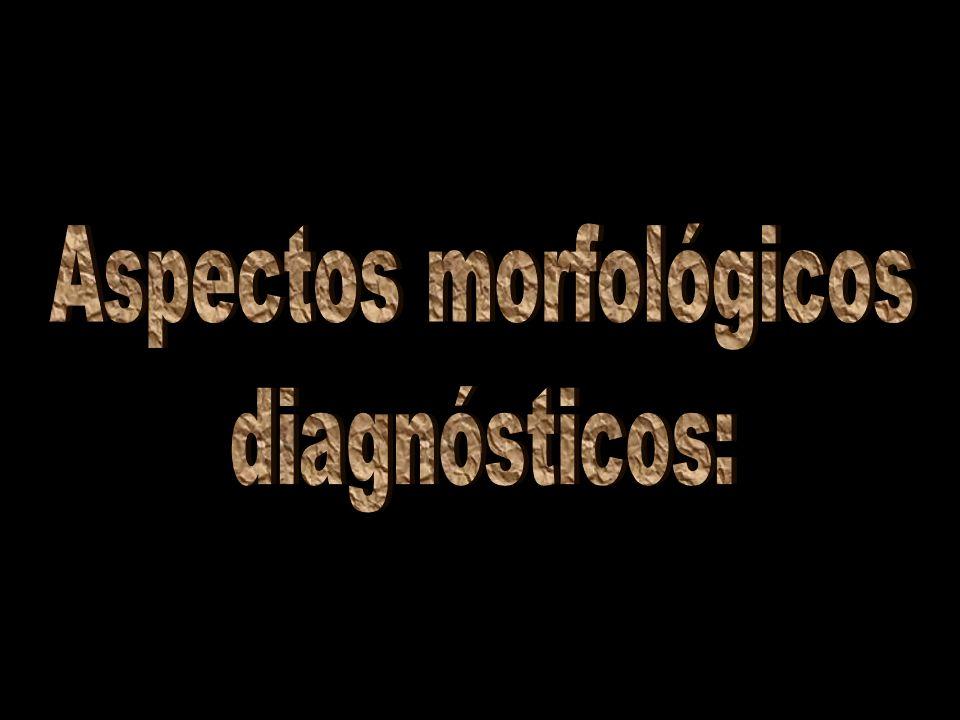 Aspectos morfológicos diagnósticos : Tamanho: 0,5 a 2 cm; Corpo: ALONGADO; Coloração: GERALMENTE ESCURA; DIMORFISMO SEXUAL.