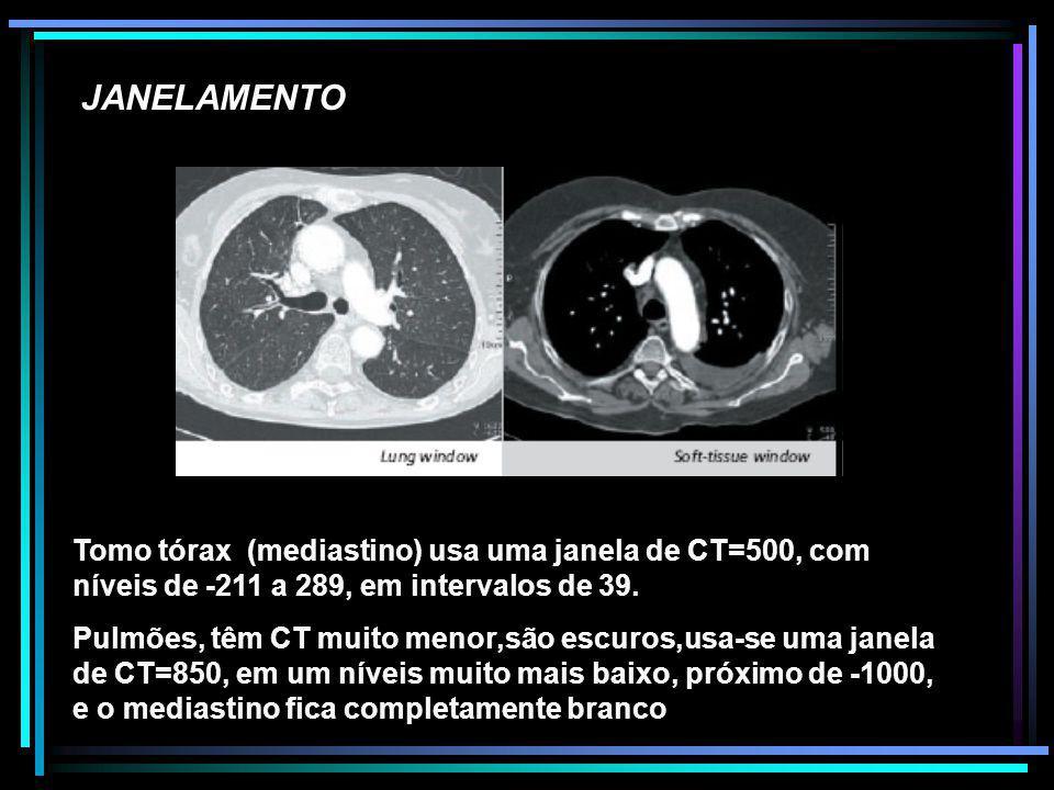 JANELAMENTO Tomo tórax (mediastino) usa uma janela de CT=500, com níveis de -211 a 289, em intervalos de 39. Pulmões, têm CT muito menor,são escuros,u