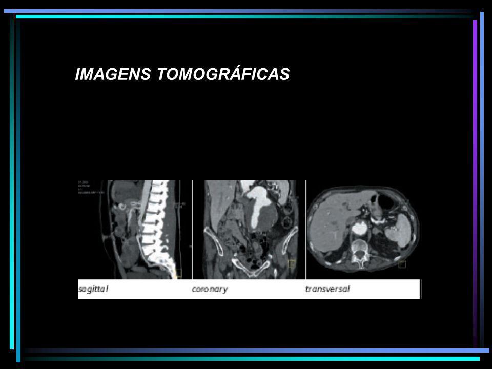 IMAGENS TOMOGRÁFICAS