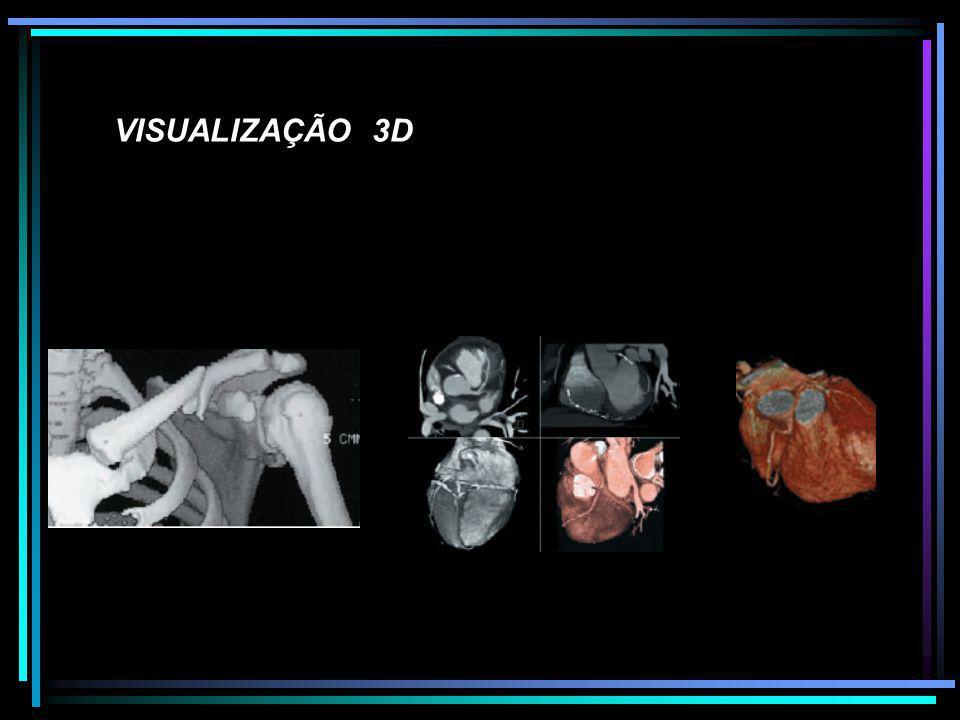 VISUALIZAÇÃO 3D