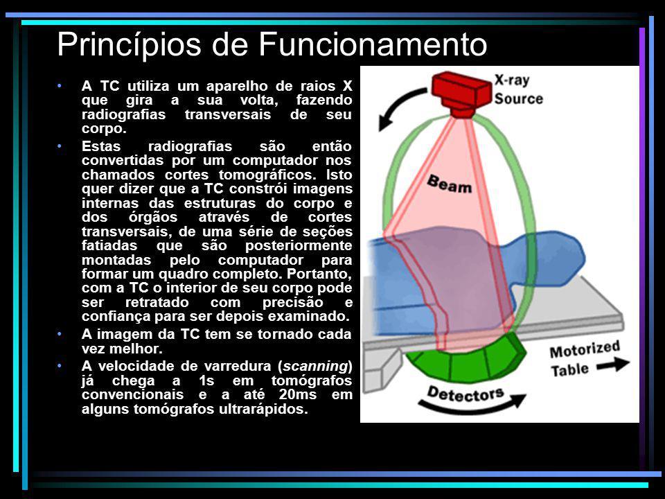 Princípios de Funcionamento A TC utiliza um aparelho de raios X que gira a sua volta, fazendo radiografias transversais de seu corpo. Estas radiografi