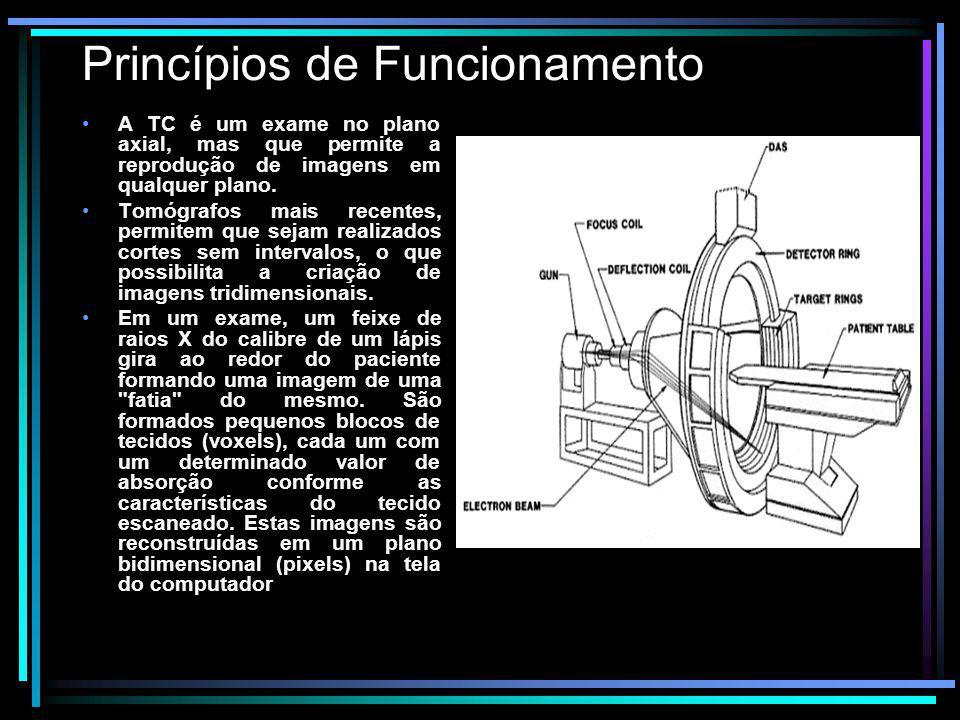Princípios de Funcionamento A TC é um exame no plano axial, mas que permite a reprodução de imagens em qualquer plano. Tomógrafos mais recentes, permi