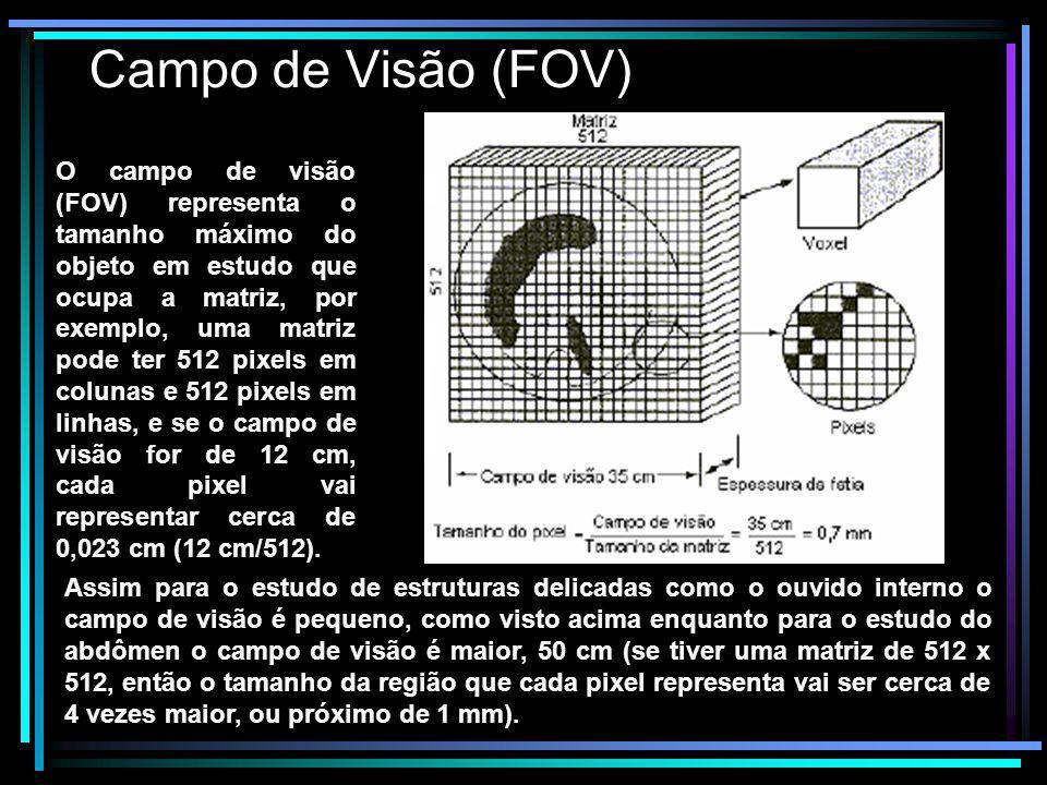 Campo de Visão (FOV) O campo de visão (FOV) representa o tamanho máximo do objeto em estudo que ocupa a matriz, por exemplo, uma matriz pode ter 512 p