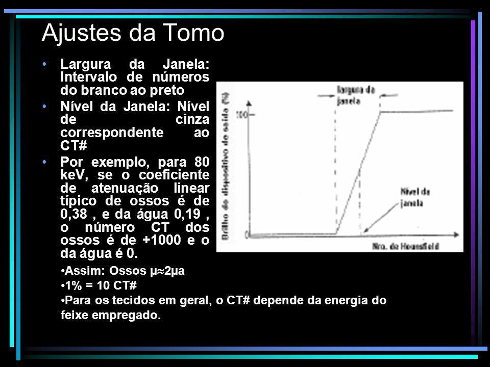 Ajustes da Tomo Largura da Janela: Intervalo de números do branco ao preto Nível da Janela: Nível de cinza correspondente ao CT# Por exemplo, para 80
