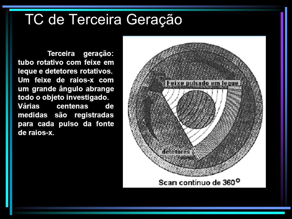 TC de Terceira Geração Terceira geração: tubo rotativo com feixe em leque e detetores rotativos. Um feixe de raios-x com um grande ângulo abrange todo