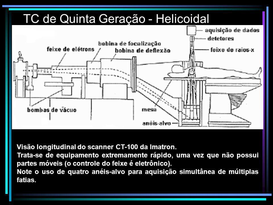 TC de Quinta Geração - Helicoidal Visão longitudinal do scanner CT-100 da Imatron. Trata-se de equipamento extremamente rápido, uma vez que não possui