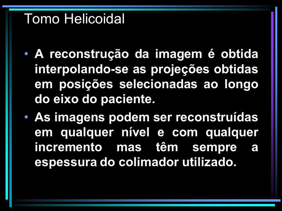 Tomo Helicoidal A reconstrução da imagem é obtida interpolando-se as projeções obtidas em posições selecionadas ao longo do eixo do paciente. As image