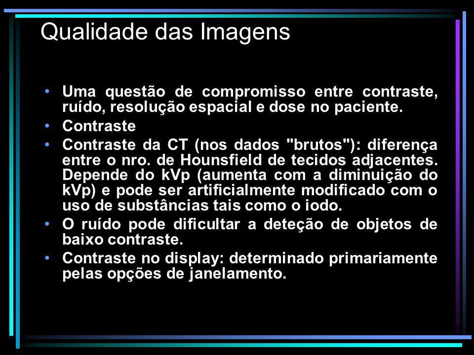 Qualidade das Imagens Uma questão de compromisso entre contraste, ruído, resolução espacial e dose no paciente. Contraste Contraste da CT (nos dados