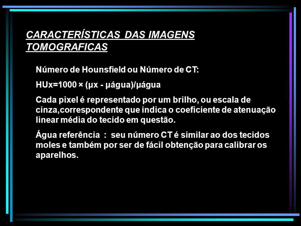 CARACTERÍSTICAS DAS IMAGENS TOMOGRAFICAS Número de Hounsfield ou Número de CT: HUx=1000 × (μx - μágua)/μágua Cada pixel é representado por um brilho,