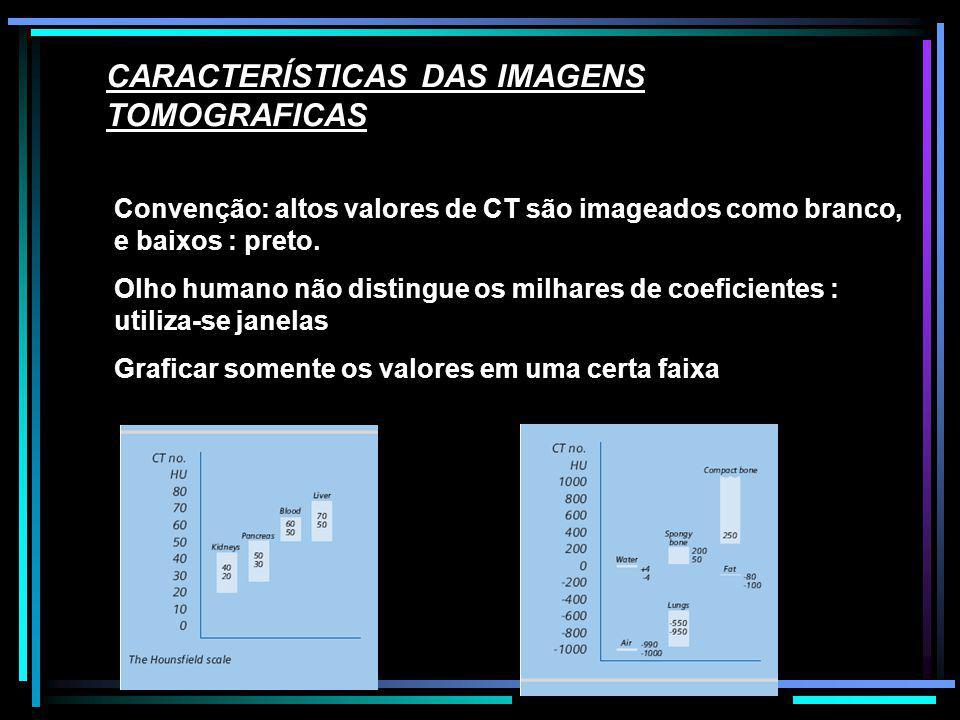 CARACTERÍSTICAS DAS IMAGENS TOMOGRAFICAS Convenção: altos valores de CT são imageados como branco, e baixos : preto. Olho humano não distingue os milh