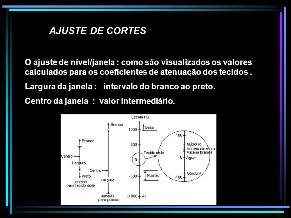 AJUSTE DE CORTES O ajuste de nível/janela : como são visualizados os valores calculados para os coeficientes de atenuação dos tecidos. Largura da jane