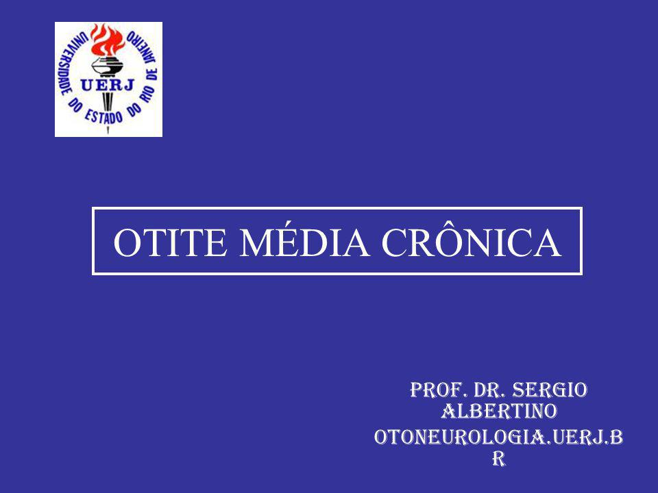 OTITE MÉDIA CRÔNICA Prof. Dr. Sergio Albertino otoneurologia.uerj.b r