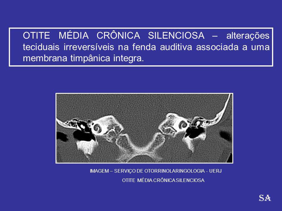 OTITE MÉDIA CRÔNICA SILENCIOSA – alterações teciduais irreversíveis na fenda auditiva associada a uma membrana timpânica integra.