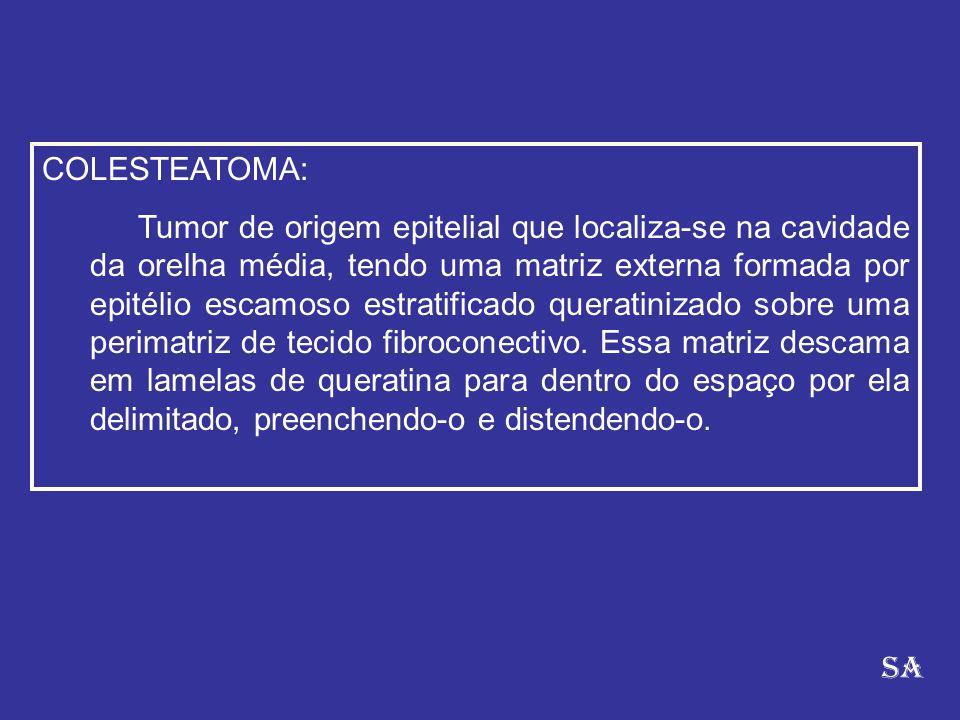 COLESTEATOMA: Tumor de origem epitelial que localiza-se na cavidade da orelha média, tendo uma matriz externa formada por epitélio escamoso estratificado queratinizado sobre uma perimatriz de tecido fibroconectivo.