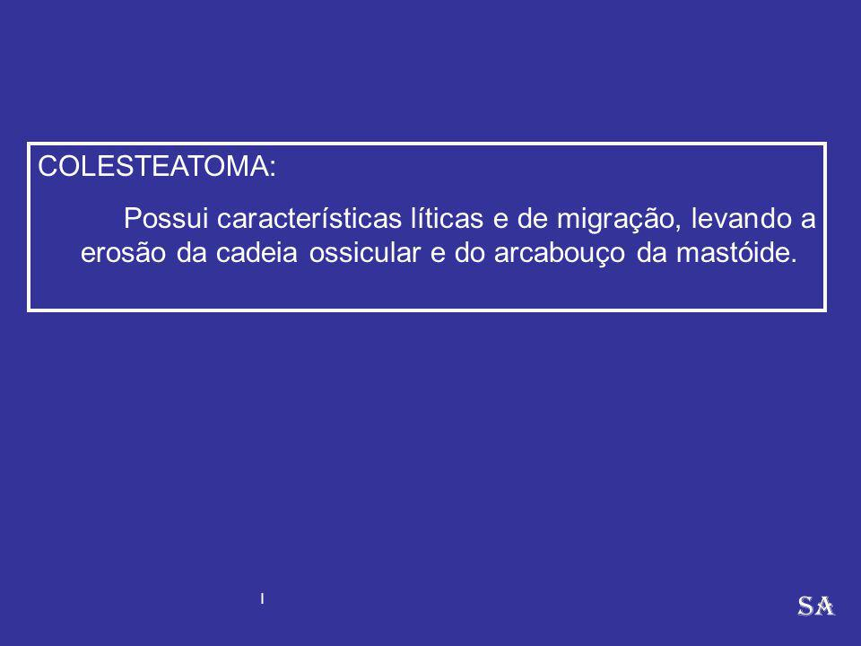 COLESTEATOMA: Possui características líticas e de migração, levando a erosão da cadeia ossicular e do arcabouço da mastóide. SA I