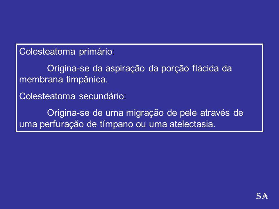 Colesteatoma primário: Origina-se da aspiração da porção flácida da membrana timpânica. Colesteatoma secundário: Origina-se de uma migração de pele at