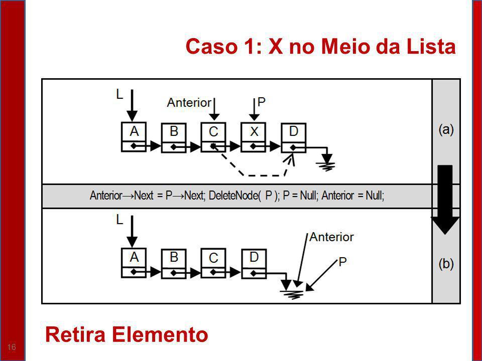 16 Caso 1: X no Meio da Lista Retira Elemento