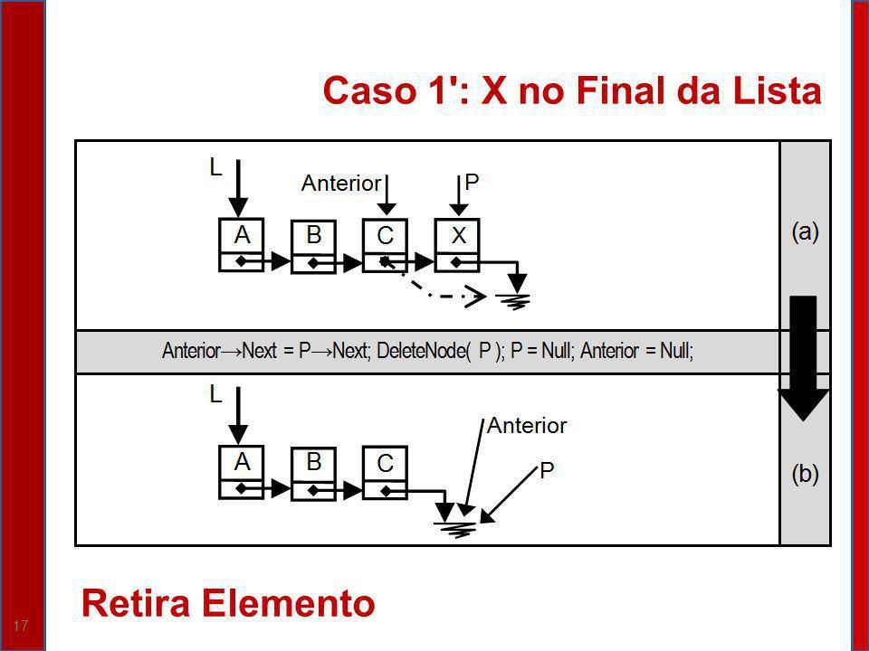 17 Caso 1 : X no Final da Lista Retira Elemento