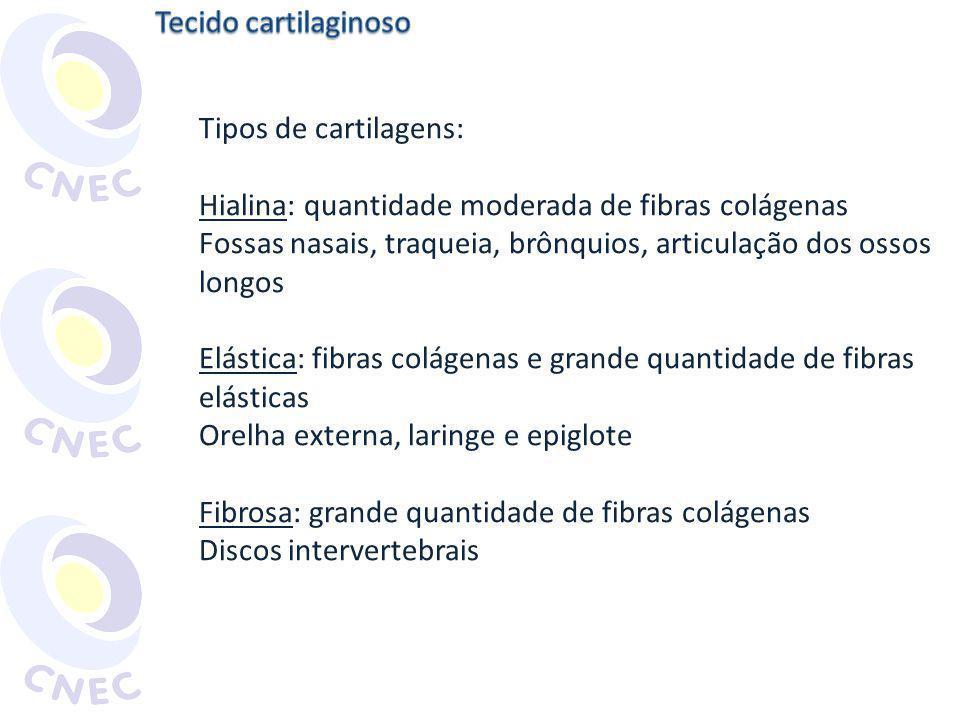 Tipos de cartilagens: Hialina: quantidade moderada de fibras colágenas Fossas nasais, traqueia, brônquios, articulação dos ossos longos Elástica: fibr