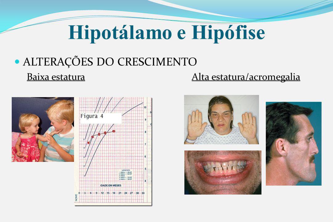 Hipotálamo e Hipófise ALTERAÇÕES DO CRESCIMENTO Baixa estaturaAlta estatura/acromegalia