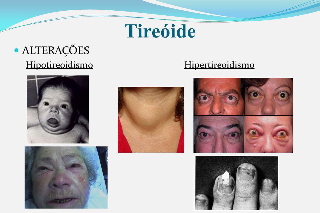 Tireóide ALTERAÇÕES HipotireoidismoHipertireoidismo