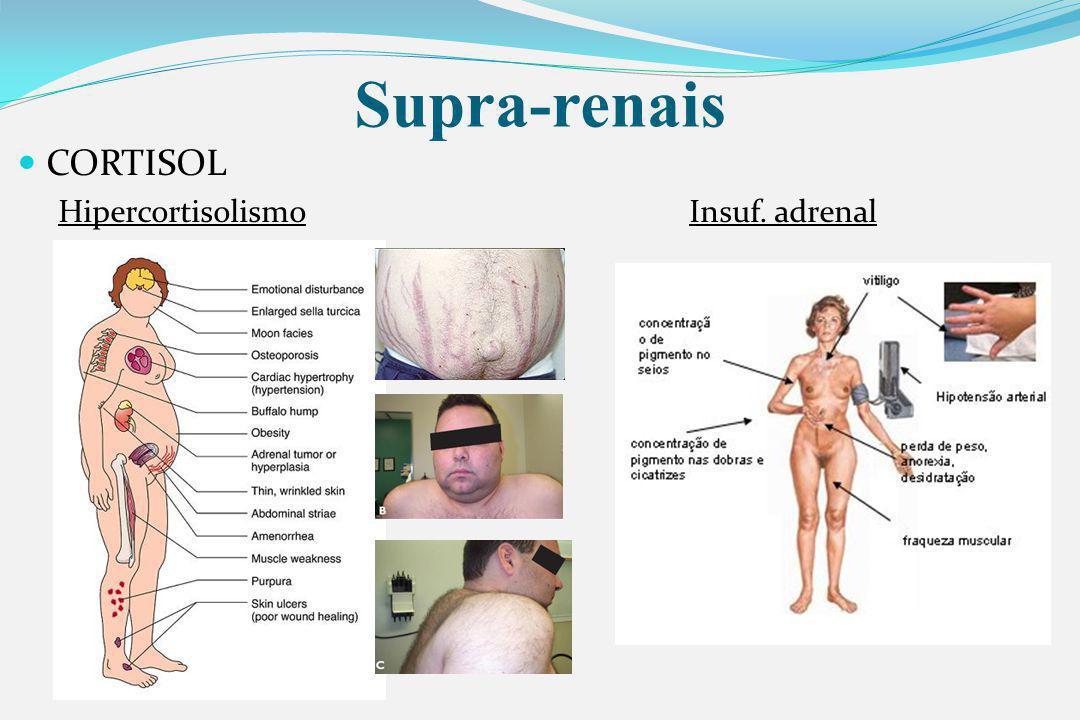 Supra-renais CORTISOL HipercortisolismoInsuf. adrenal
