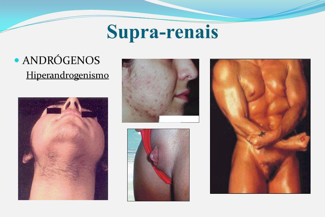 Supra-renais ANDRÓGENOS Hiperandrogenismo